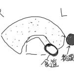 甲状腺エコー