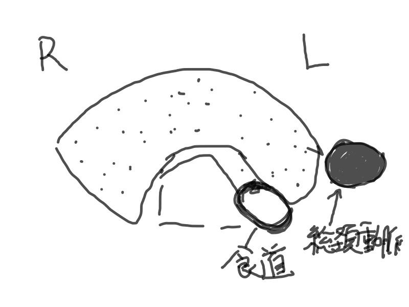 koujyousenn1